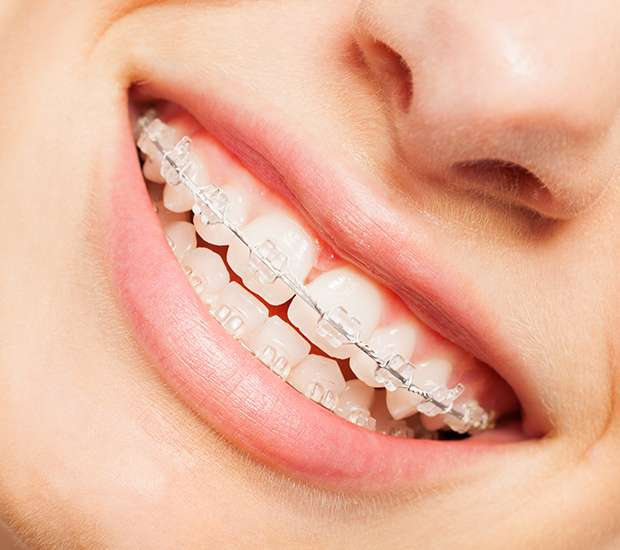 Beaverton Clear Braces