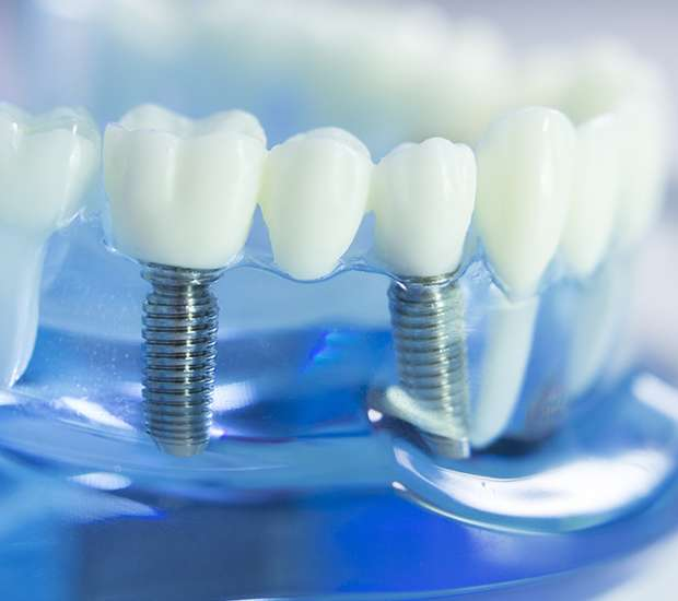 Beaverton Dental Implants