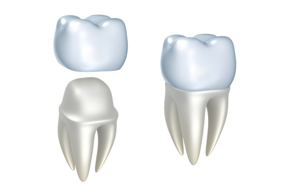 One Stop For Dental Implants