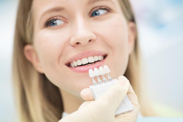 Dental Veneers and Dental Laminates Beaverton, OR