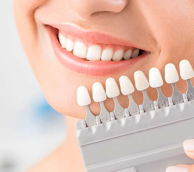 Beaverton Dental Veneers and Dental Laminates