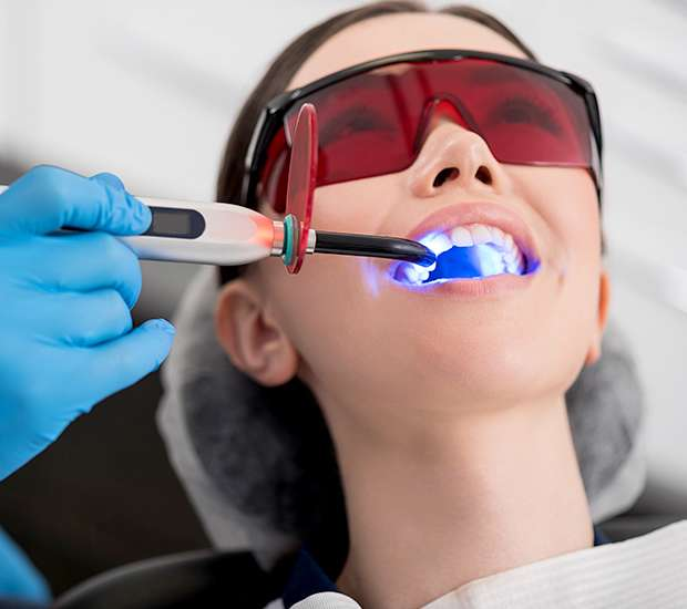 Beaverton Professional Teeth Whitening