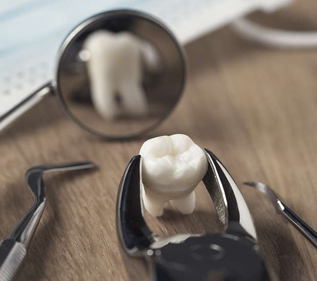 Beaverton When Is a Tooth Extraction Necessary